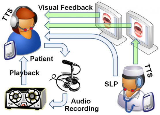Tongue Tracking System (TTS) for Speech Impairment, Diagnosis and Therapy