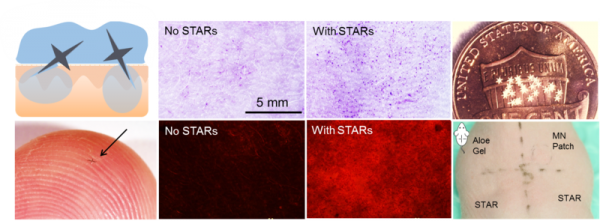 Enhanced Delivery of Bioactives into Skin with STAR Particles