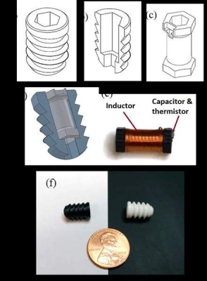 Embedded Wireless Temperature Sensor for Orthopedic Implants